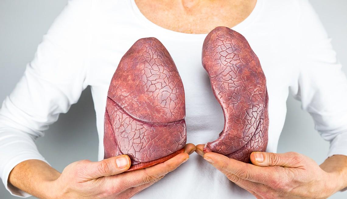 Ung thư phổi đang ngày càng trẻ hoá: Đừng để đến lúc phát hiện thì đã quá muộn - Ảnh 4