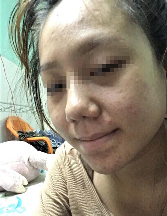 Vụ cô gái tố bị hỏng mũi, đe dọa sau khi làm đẹp: Thẩm mỹ viện nói gì? - Ảnh 2