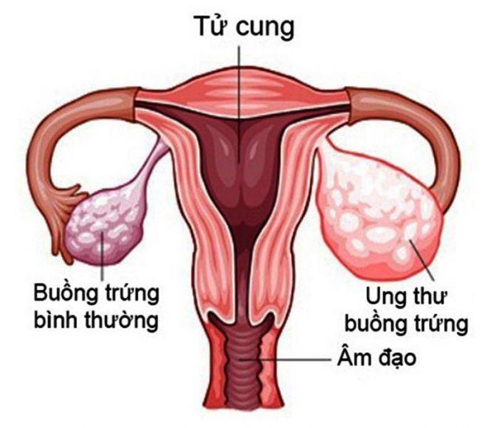 Nhiều trẻ chưa 15 tuổi đã mắc ung thư buồng trứng, đừng chủ quan khi thấy dấu hiệu này - Ảnh 1
