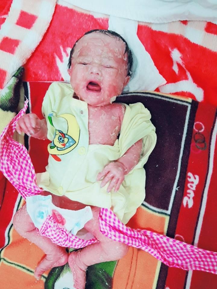 Xót cảnh cha mẹ bất lực nhìn con gái mới sinh bị tróc da từng lớp, gào khóc đau đớn - Ảnh 3