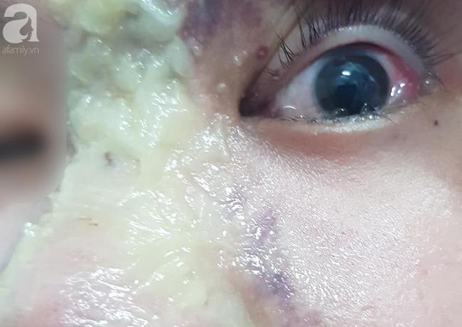 Nhẹ dạ đi tiêm filler nâng mũi tại spa trôi nổi, thiếu nữ 15 tuổi bị mù vĩnh viễn mắt trái ngày cận Tết - Ảnh 2
