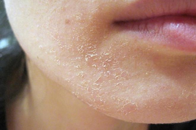 4 cặp chất dưỡng da gây hậu quả xấu khi kết hợp cùng nhau - Ảnh 2