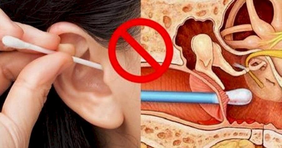 Cảnh báo: 'Quái vật' trong lỗ tai khiến bé không nghe, chậm nói, bố mẹ cần diệt ngay kẻo trễ - Ảnh 3