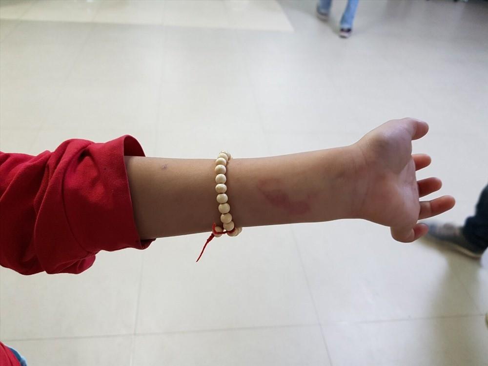 Hải Phòng: Không làm đúng bài tập, học sinh lớp 2 bị cô đánh bầm lưng - Ảnh 2