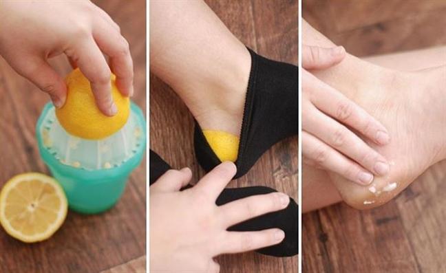 Những cách hô biến nứt gót chân hiệu quả - Ảnh 2