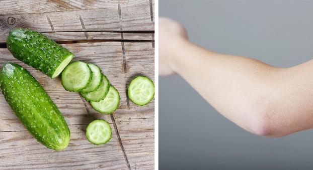 5 mẹo vặt trị thâm đầu gối, khuỷu tay giúp da sáng bật tông mà không cần kem dưỡng - Ảnh 1