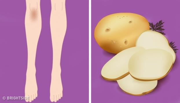 5 mẹo vặt trị thâm đầu gối, khuỷu tay giúp da sáng bật tông mà không cần kem dưỡng - Ảnh 4