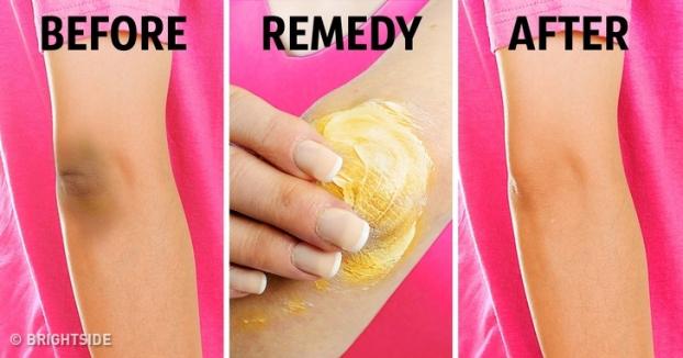 5 mẹo vặt trị thâm đầu gối, khuỷu tay giúp da sáng bật tông mà không cần kem dưỡng - Ảnh 5