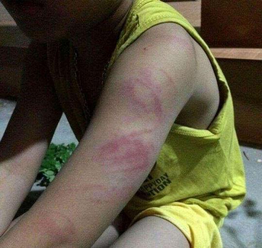Đọc viết chưa thạo, học sinh lớp 1 bị cô giáo đánh bầm tím người - Ảnh 1
