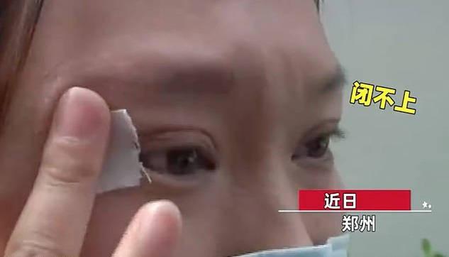 Chi 65 triệu đồng để phẫu thuật cắt mí, đẹp đâu chẳng thấy cô gái sốc khi phát hiện bất thường oái oăm ở đôi mắt của mình - Ảnh 2