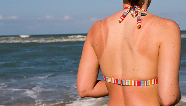 """Những """"vết hằn dây áo"""" do cháy nắng sẽ biến mất nhanh hơn với 5 tips đơn giản này - Ảnh 4"""
