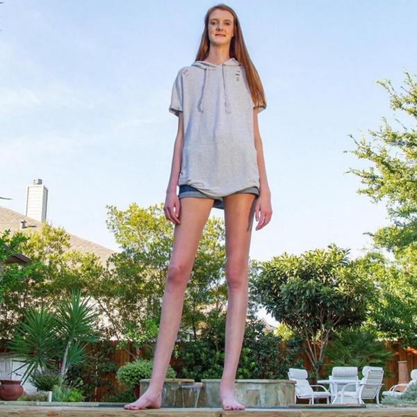Cuộc sống rắc rối của cô gái có đôi chân dài nhất thế giới - Ảnh 1