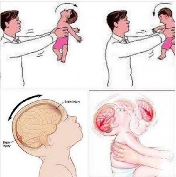 Cảnh báo: cha mẹ không nên chơi trò 'tung hứng' con nhỏ - Ảnh 2