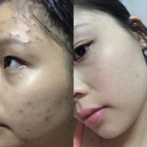 Bác sĩ chứng minh: Dùng dầu rửa mặt thì da sẽ đẹp hơn bao giờ hết, thử 1 lần đi, bạn sẽ 'nghiện' ngay cho mà xem - Ảnh 5