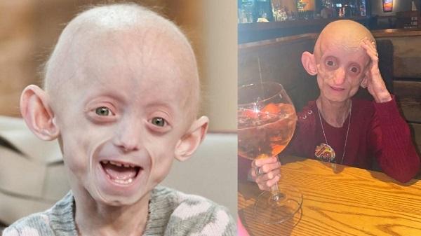 Cô gái có vẻ ngoài như cụ bà 144 tuổi qua đời với lời trăn trối cảm động ở tuổi 18