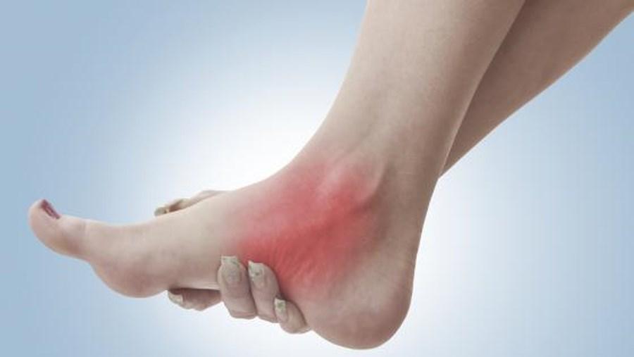 Cách sơ cứu bong gân đúng cách để tránh ảnh hưởng đến xương khớp sau này - Ảnh 1
