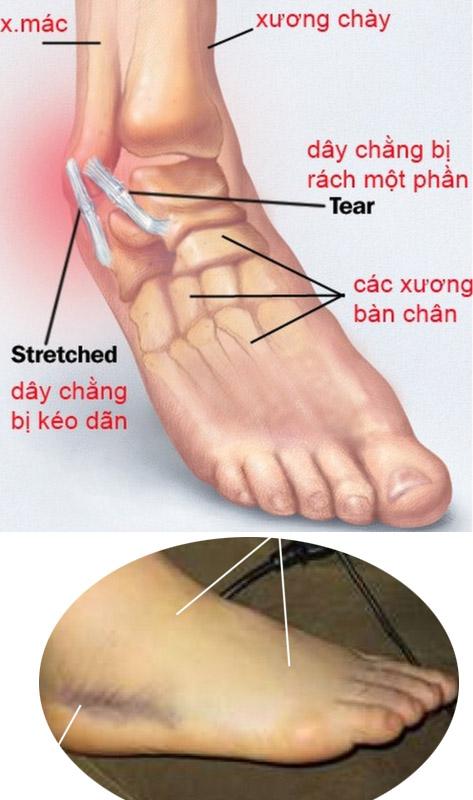 Cách sơ cứu bong gân đúng cách để tránh ảnh hưởng đến xương khớp sau này - Ảnh 2