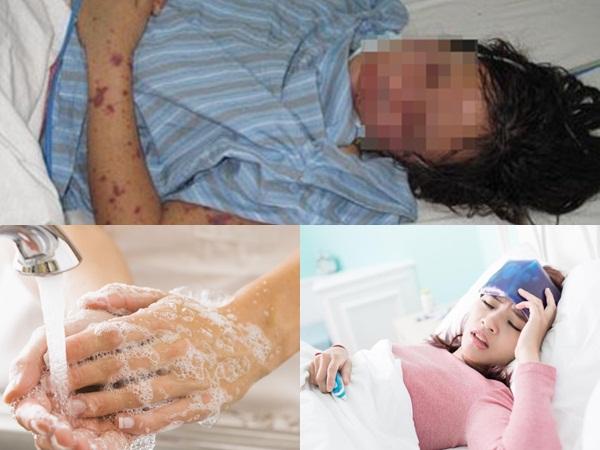 Viêm màng não mô cầu: Cần sớm nhận biết dấu hiệu bệnh trước khi mất mạng