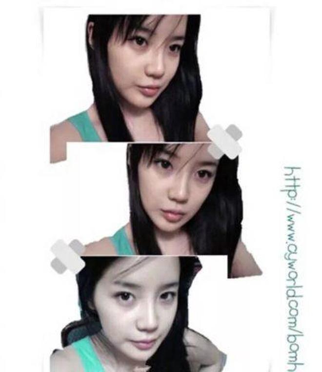 Sao nữ nổi tiếng xứ Hàn lại khiến dân mạng 'sốc tận óc' với ngoại hình gần đây, khuôn mặt bị 'nát' vì dao kéo quá đà? - Ảnh 4