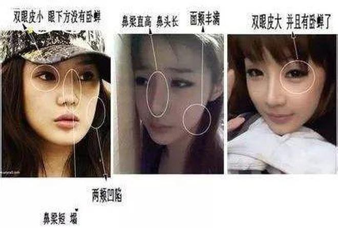 Sao nữ nổi tiếng xứ Hàn lại khiến dân mạng 'sốc tận óc' với ngoại hình gần đây, khuôn mặt bị 'nát' vì dao kéo quá đà? - Ảnh 5