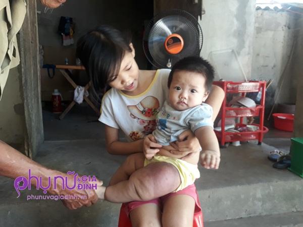 Đau đáu ánh mắt bé gái 7 tháng tuổi mang 'chân voi' đang giành giật sự sống vì căn bệnh hiếm gặp