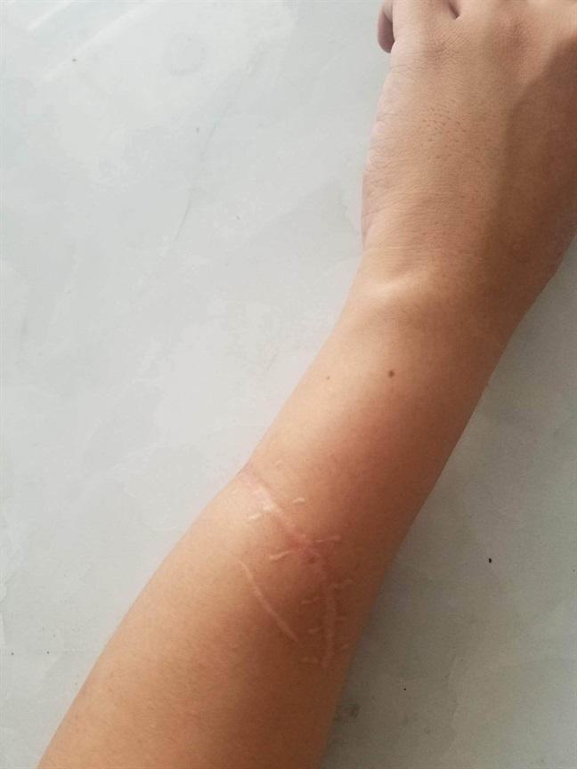 Bị chém đứt gân tay, chàng trai bình phục một cách kỳ diệu sau 45 ngày nhờ tập ảo thuật - Ảnh 3