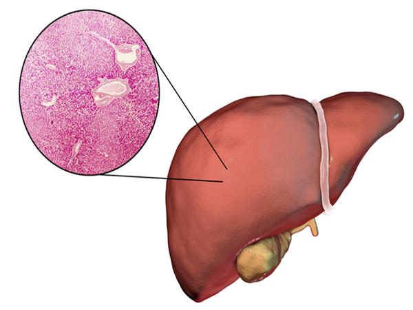 """BS nói về lộ trình viêm gan - xơ gan - ung thư gan: Mỗi người cần làm 4 việc để """"né"""" bệnh"""