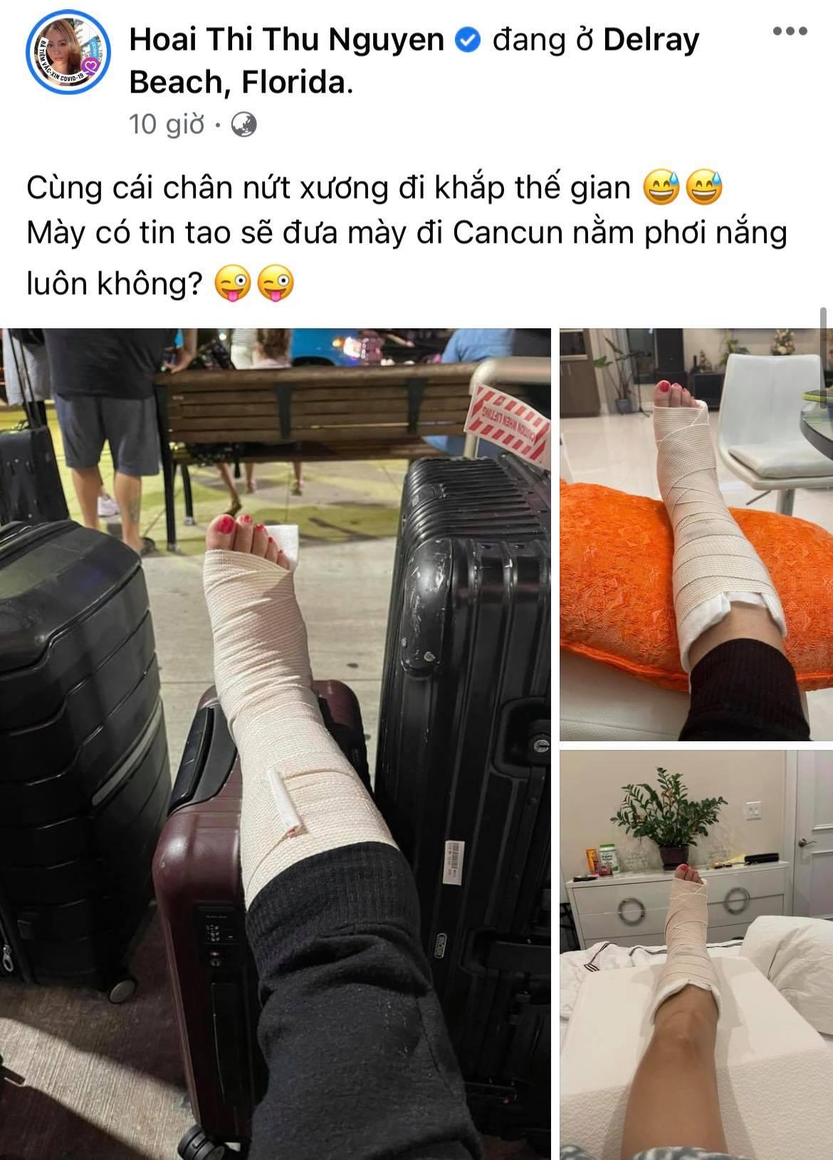 Hoa hậu Thu Hoài gặp chấn thương nghiêm trọng ở Mỹ, Hari Won - Mai Hồ cùng dàn sao Việt đồng loạt lo lắng hỏi thăm - Ảnh 1