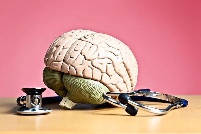 Người đàn ông bị liệt vĩnh viễn sau một thời gian ăn chay: Bác sĩ nói nguyên nhân chính là kiểu ăn uống triệu người đang mắc - Ảnh 3