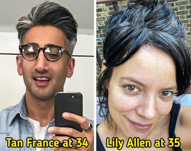 Vì sao nhiều người trẻ tóc bạc sớm và cách đảo ngược quá trình bạc tóc - Ảnh 1
