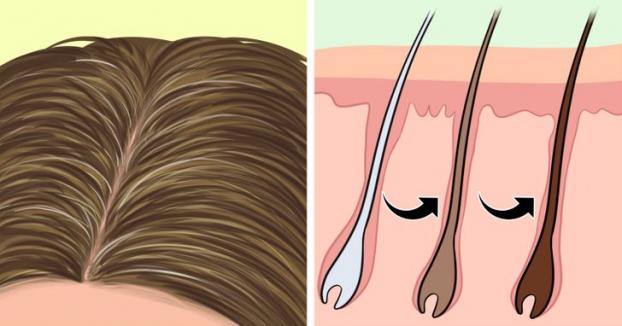 Vì sao nhiều người trẻ tóc bạc sớm và cách đảo ngược quá trình bạc tóc - Ảnh 2