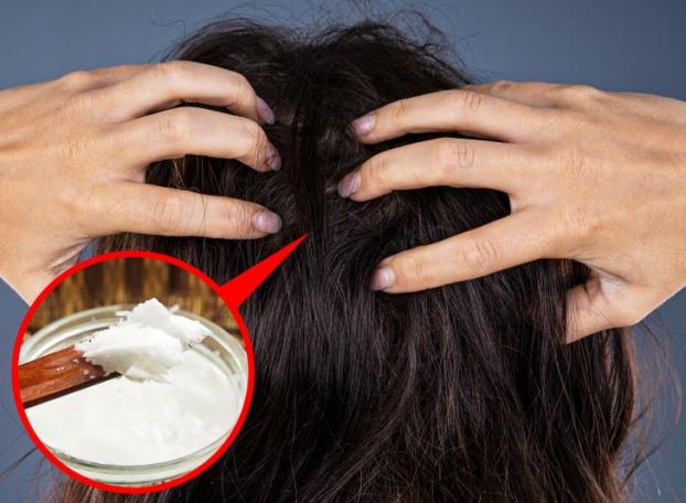 Vì sao nhiều người trẻ tóc bạc sớm và cách đảo ngược quá trình bạc tóc - Ảnh 4