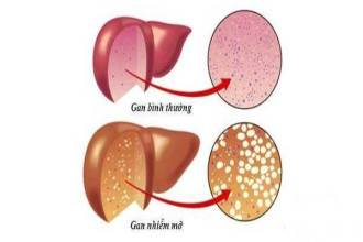 Ăn chay trị gan nhiễm mỡ: Tác dụng ngược