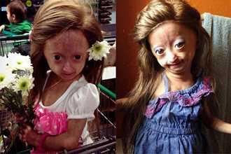 """Bé gái sơ sinh kỳ lạ từng được đoán """"thọ 13 năm"""", nay đã lớn xinh đẹp"""