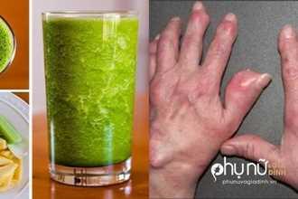 Mỗi ngày 1 ly này, đào thải axit uric khỏi máu cấp tốc, cả đời không lo bệnh gút