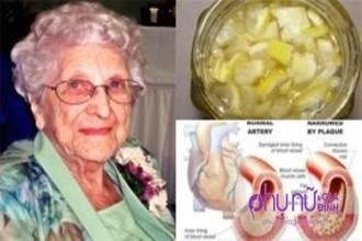 Công thức thần kỳ giúp cụ bà 85 tuổi không bao giờ bị cao huyết áp hay mỡ máu