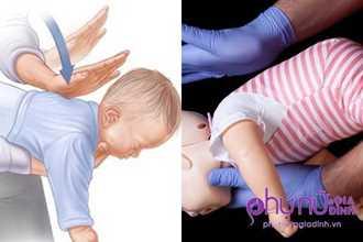 Trẻ bị hóc dị vật, cha mẹ cần làm ngay điều này để cứu con kẻo ân hận cả đời