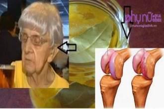 Ngồi xe lăn vài năm vì đau xương khớp, giờ cụ bà 74 tuổi có thể chạy nhờ công thức này