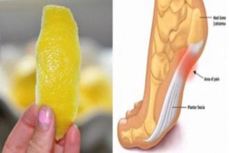 Dùng vỏ chanh theo cách này sẽ giúp bạn hết đau nhức xương khớp mà không cần phải uống thuốc