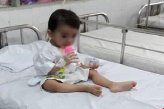 Kinh hoàng lấy chiếc thìa mắc trong cổ họng bé gái 2 tuổi sau khi ngã ở nhà trẻ
