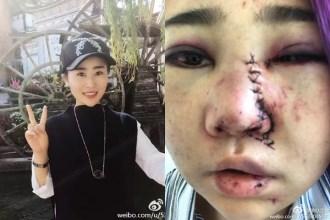 Trung Quốc: Đang ăn BBQ, các cô gái xinh đẹp bất ngờ bị nhóm nam giới say rượu đánh đập, tấn công dã man