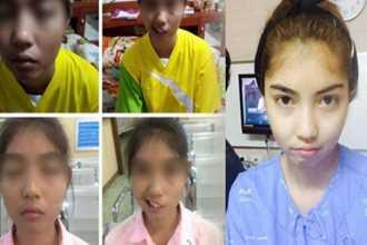Bị bạn học miệt thị vì mồm lệch và mắt lác, nữ sinh lột xác ngoạn mục sau 2 năm