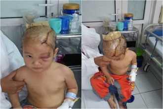 Thanh Hóa: Bé gái 3 tuổi bị chó hoang tấn công suýt mất mạng