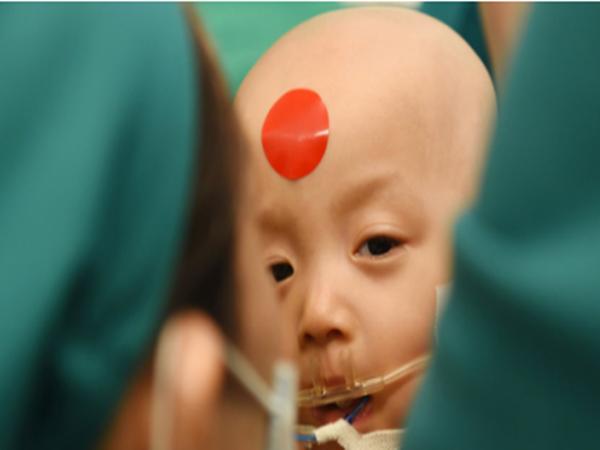 Cặp dính song sinh Trúc Nhi – Diệu Nhi đã tỉnh sau phẫu thuật, sức khỏe các em ra sao?