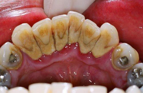 Cô đặc nắm lá chanh thế này, đau nhức do sâu răng, nhiệt miệng sẽ khỏi hoàn toàn mà chẳng cần đến thuốc kháng sinh - Ảnh 1