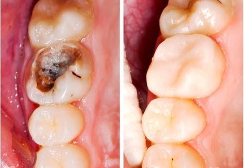 Cô đặc nắm lá chanh thế này, đau nhức do sâu răng, nhiệt miệng sẽ khỏi hoàn toàn mà chẳng cần đến thuốc kháng sinh - Ảnh 4