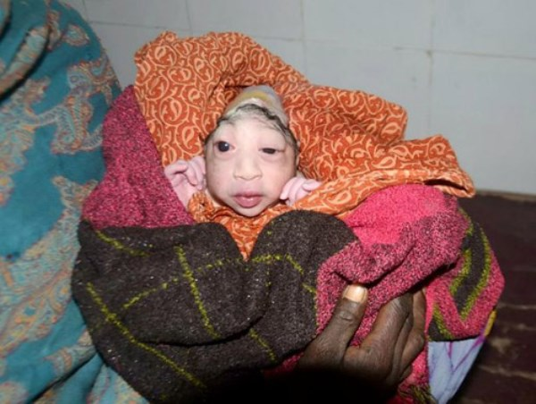 Con sinh ra bị dị tật, mẹ sốc nặng, sợ hãi quyết không cho bú - Ảnh 2