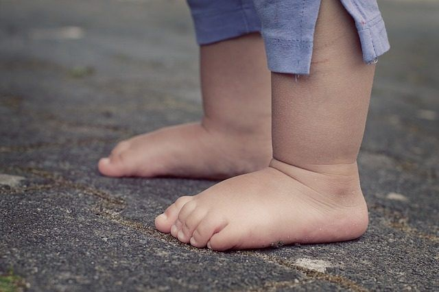 Dấu hiệu lạ ở bàn chân con cảnh báo hiện tượng mà 30% trẻ em Châu Á đang mắc phải - Ảnh 1