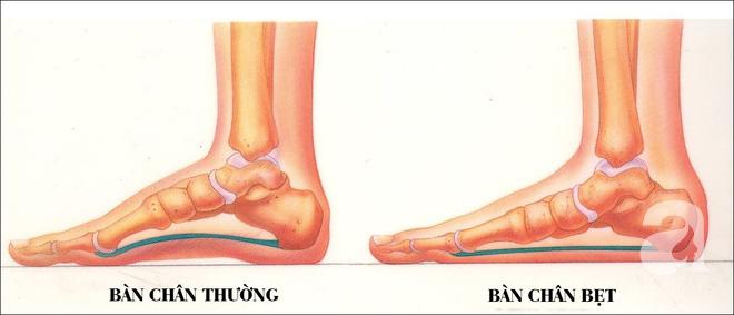 Dấu hiệu lạ ở bàn chân con cảnh báo hiện tượng mà 30% trẻ em Châu Á đang mắc phải - Ảnh 4