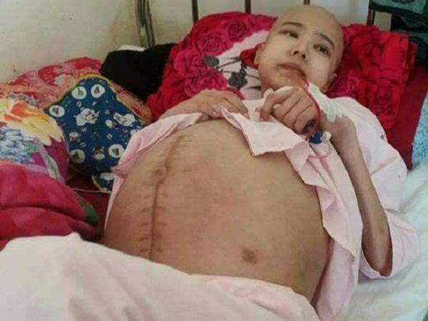 Hành trình giành giật sự sống của cô gái xinh đẹp mắc bệnh ung thư buồng trứng